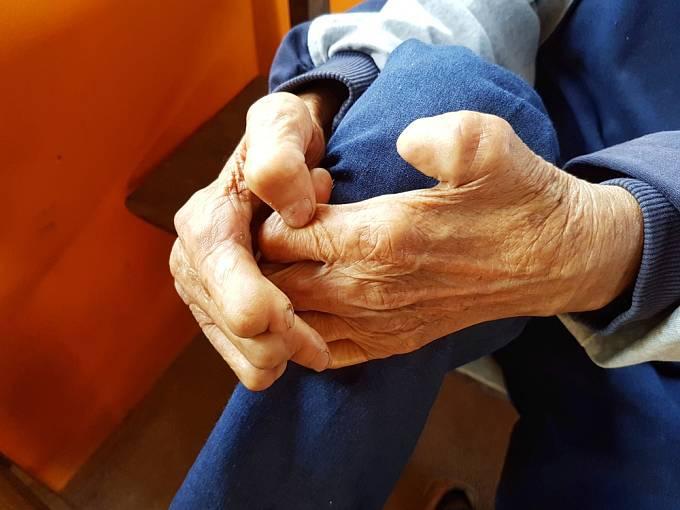 Ruce deformované leprou