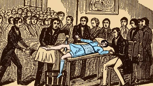 Chirurgický zákrok před vynálezem anestetik