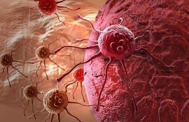 Rakovinové buňky si okolo sebe vytváří ochranné kyselé prostředí.