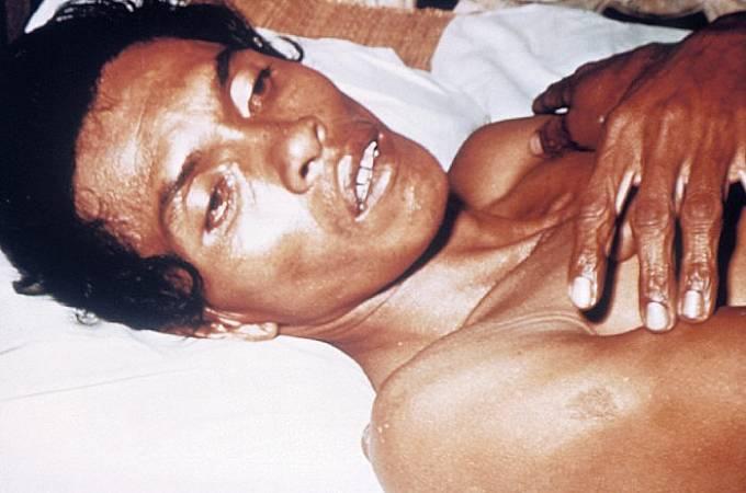 Pacient s cholerou. Typický příznak tzv. ruce pradleny podmíněné sníženým kožním turgorem jako typický příznak dehydratace způsobené cholerou.