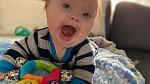 Edward se s Downovým syndromem pere ze všech sil.