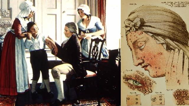 Pravé neštovice (černé neštovice, lat. Variola nebo Variola vera) je prudce nakažlivá akutní choroba. Úspěšný boj proti pravým neštovicím zahájil Edward Jenner (vlevo).