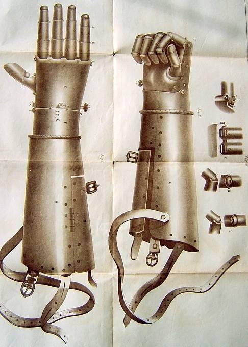 Götzova důmyslně vyrobená protéza