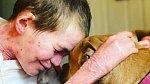Dvě ze tří dětí Melissy trpí vážným onemocněním kůže.