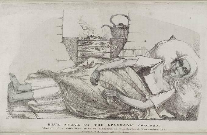 """Cholera přezdívaná """"modrá smrt"""". Dehydratace může způsobit zmodrání kůže."""