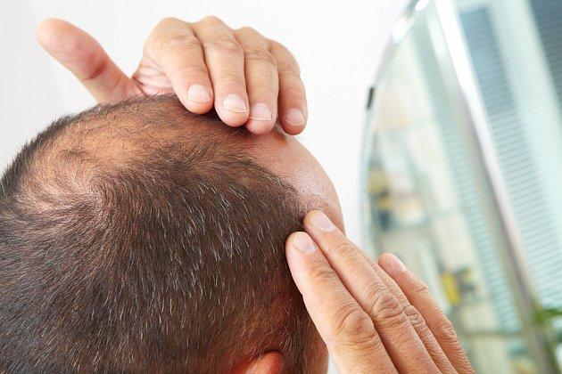 Vlasům prospívá strava bohatá na zinek a železo.