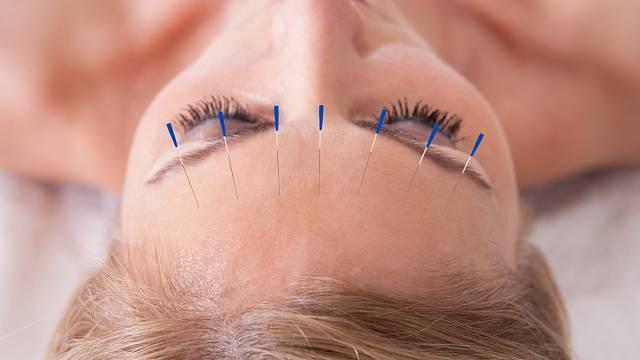 Akupunktura může ovlivnit třeba chuť k jídlu