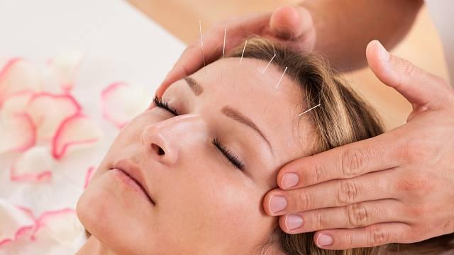 Akupunktura pomáhá s příznaky menopauzy