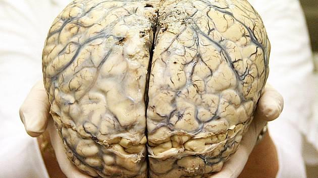 Zkoumaný mozek v rukou patologa.