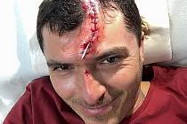 Osmnáct stehů ve tváři si ve druhém kole Mostecké ligy malé kopané odnesl kapitán týmu GMS Petr Hrach, který bojoval v duelu proti celku Inseminátors FC.