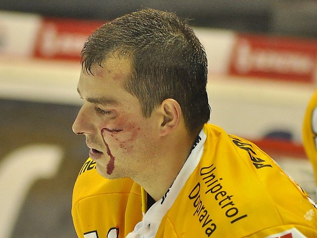 Tomáš Frolo s obličejem rozseknutým od hokejky.