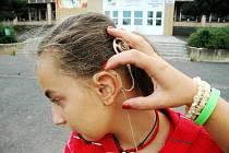 Za uchem má Adélka mikrofon, je propojen s procesorem. Kochleární implantát má pod kůží, kde je natrvalo.