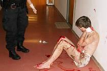 Pořezaný muž v mostecké nemocnici.