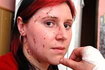 Lenka Güntherová týden po nehodě autobusu.