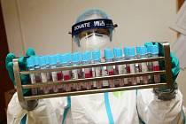 Krajská zdravotní zavádí od úterý preventivní opatření ve všech svých nemocnicích.