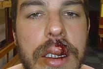 Tomáš Frolo a jeho zranění, které si vyžádalo zákrok v jihlavské nemocnici.