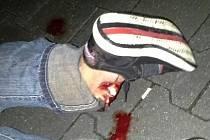 Zlomený kotník rumunského zloděje.