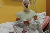 Popálená Markéta skončila v teplické nemocnici.