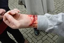 Zranění vypadalo opravdu věrohodně.