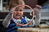 Petr Procházka z Krupky, dítě s nemocí motýlích křídel