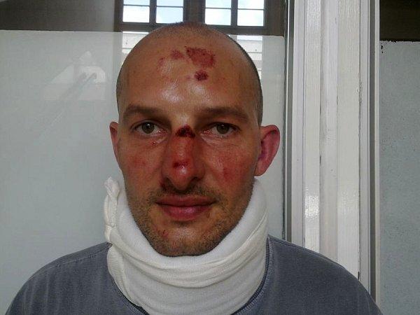 Jeden znapadených. Čtveřice Romů ho zbila vsobotu před půlnocí. Musela ho ošetřit záchranka. Foto: Facebook