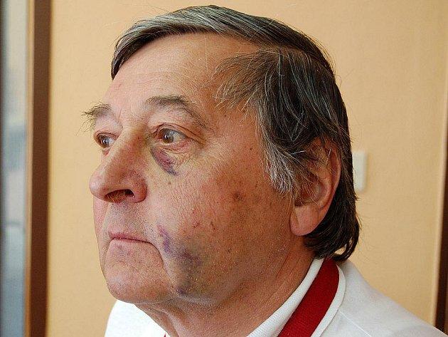 Modřiny v tváři muže, jehož před sportovní halou v Domažlicích napadl florbalista FbC Domažlice slavící zisk titulu.