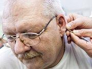Ušní akupunktura v rámci tradiční čínské medicíny jako odvykací léčba závislosti na kouření.