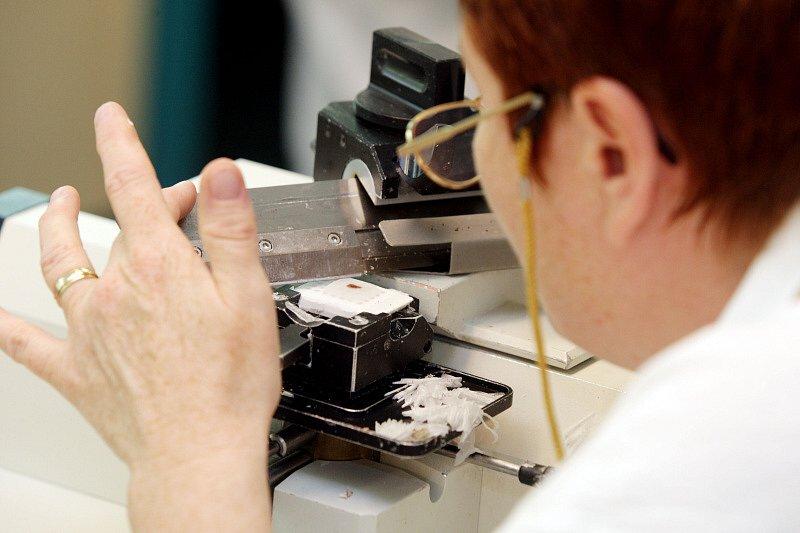 Revoluci v léčbě nádorů by mohl přinést projekt, na němž spolu s Ústavem molekulární genetiky Akademie věd pracují odborníci Fingerlandova ústavu patologie Fakultní nemocnice v Hradci Králové a hradecké Lékařské fakulty UK.
