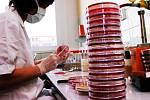 S JAKÝM MATERIÁLEM budou nakonec pracovat v Ústavu klinické mikrobiologie v hradecké fakultní nemocnici? Jeden z vyřazených účastníků výběrového řízení se odvolal.