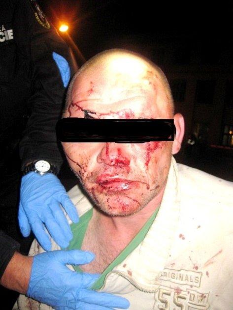Vobličeji zraněný muž.