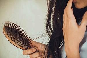 Alopecie může postihnout kohokoli, nevyhýbá se ani malým dětem.