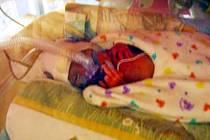 Údajně autentická fotka z hradecké dětské kliniky. Předčasně narozené dítě v inkubátoru.