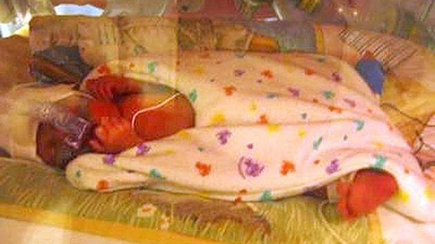 Fotografii dítěte v inkubátoru údajně pořídil otec a vložil do diskusního fóra.
