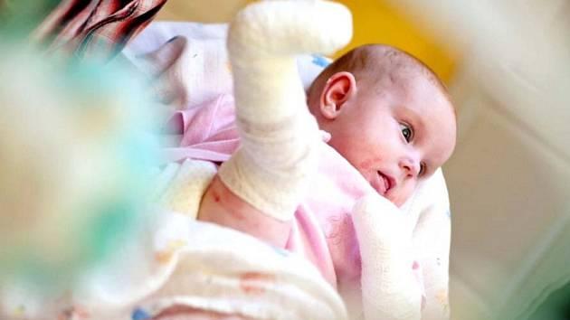 """Malá Vaneska z Chlumce trpí takzvanou nemocí """"motýlích křídel""""."""