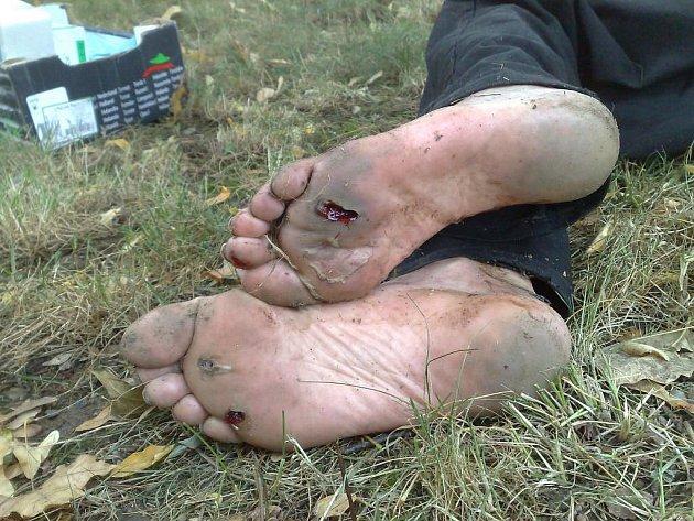 Zraněný bezdomovec ležel an trávníku vPřeštické ulici vPlzni tři dny bez pomoci