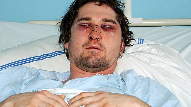 CHTĚL SE BAVIT. Vašek V., který chtěl na horách pohodově oslavit příchod nového roku, skončil po útoku mužů v nemocnici.