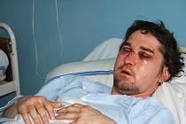Výsledek útoku agresorů. Takto vypadal Karlovarák Václav V. poté, co si ho 1. ledna nad ránem vzala na Rumburaku parta agresorů z Ostrova do parády.