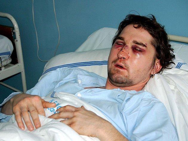 DVA DNY PO ÚTOKU. Takto vypadal Václav V. dva dny poté, co ho na Rumburaku napadli agresoři z Ostrova. Už se cítí lépe, ale má za sebou vážnou operaci obličeje.