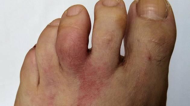 Projev alergické reakce na atak hmyzích upírů. Zda se jedná o borreliózu, prokáží až krevní testy.