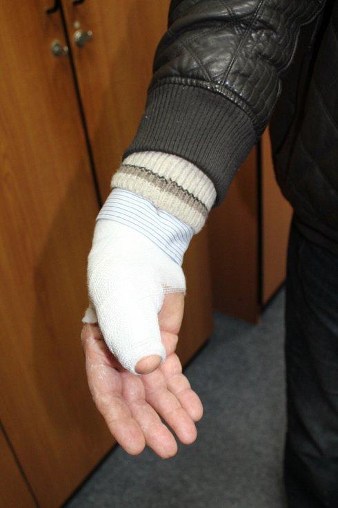 Následky zásahu větrem uneseného stánku na ruce Jaroslava Janků.