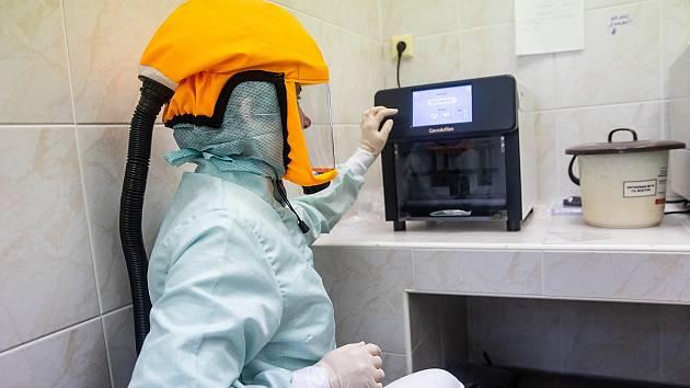 Laboratorní vyšetření na Covid-19 metodou PCR.