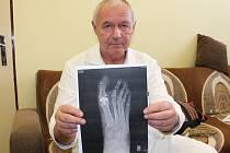 Primář ortopedického oddělení Klatovské nemocnice Jan Pešek.