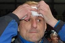 Trenér Klášterce nad Ohří Petr Nekvinda si z Klatov kromě postupu odvezl také několik stehů na čele, když ho na střídačce trefil odražený puk.