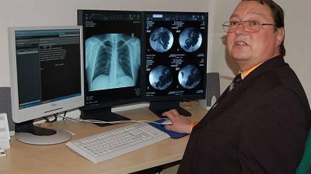 Nový rentgenový přístroj.