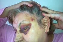 Marie Vrabcová měla otřes mozku a podlitiny v obličeji