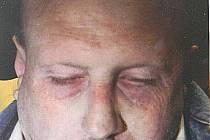 Oběšený muž v Železné Rudě.