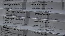 Pozitivní na covid-19, negativní, pozitivní, negativní... Celkem pětkrát za sebou to během několika měsíců zažila pendlerka z Klatovska.