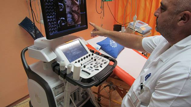 Primář interního oddělení Nemocnice Vrchlabí Jaroslav Kajzr ukazuje v kardiologické ambulanci echokardiografický přístroj 4D, který dokáže velmi přesně odhalit onemocnění a vady srdce.