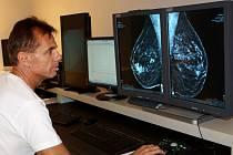 KVALITNÍ MODERNÍ PRACOVIŠTĚ v Palackého ulici v Trutnově zajišťuje důkladné vyšetření mamografem i ulrazvukem a lékařům specialistům umožňuje správné a včasné diagnostikování onemocnění na základě přesných informací.
