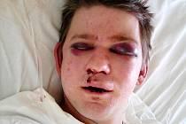 DEN PO ÚTOKU. Takhle vypadal napadený Ondřej po operaci.